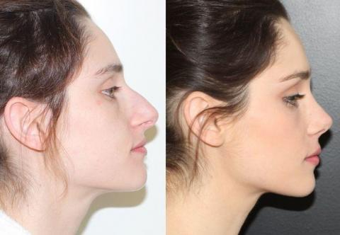 Things to consider before a nose job