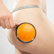 Essential steps to avoid cellulite