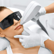 Some questions about laser hair removal